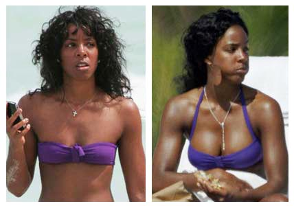 E Cup Breast Implants Before And After to get breast implants