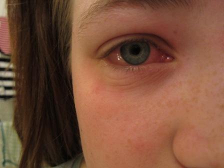 allergitest mot katt