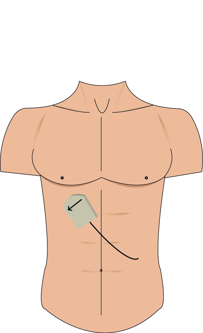 emory emergency ultrasound follow the mlf to find the portal triad