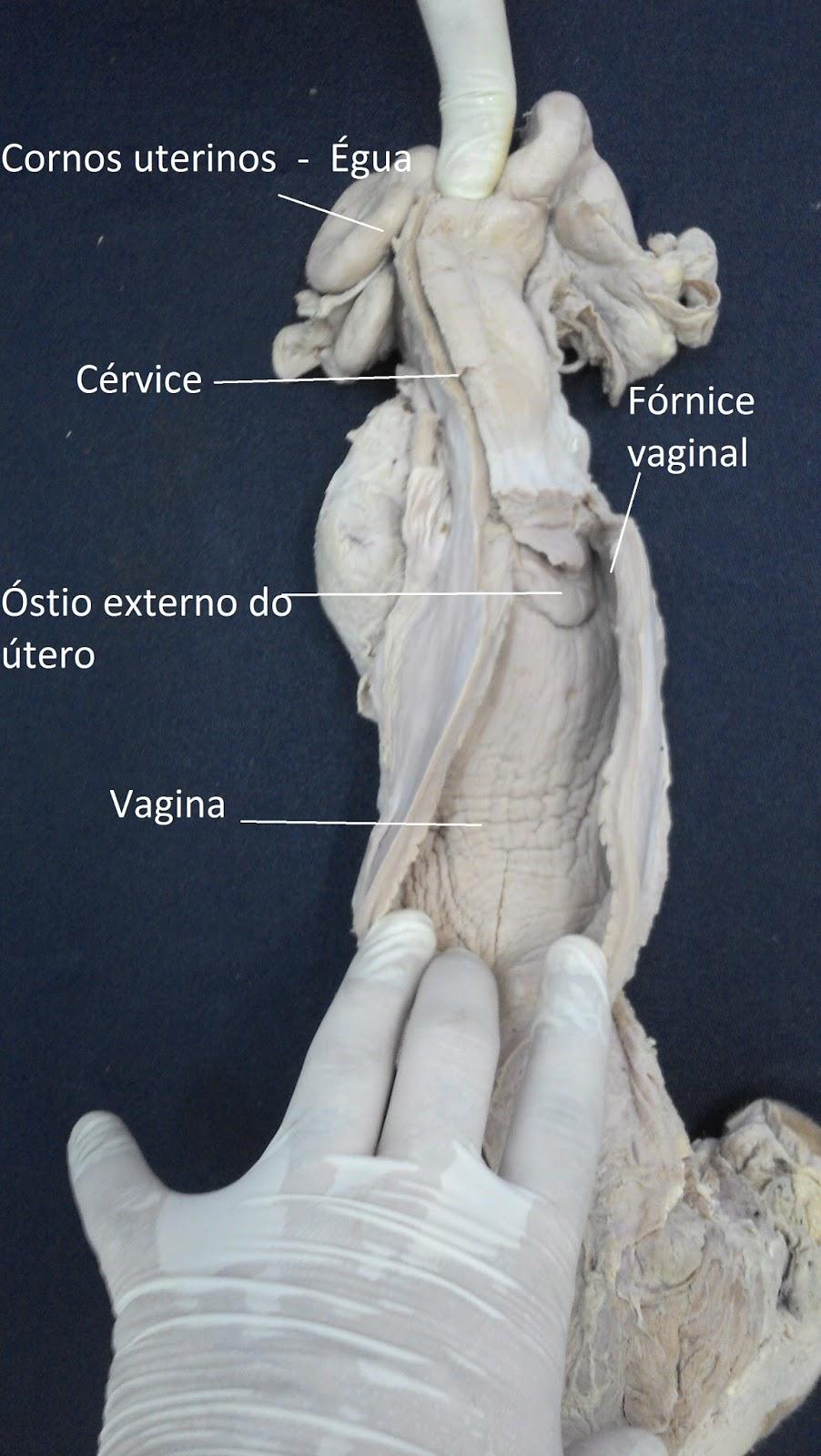 Moderno Anatomía Vaginal Externa Cresta - Imágenes de Anatomía ...