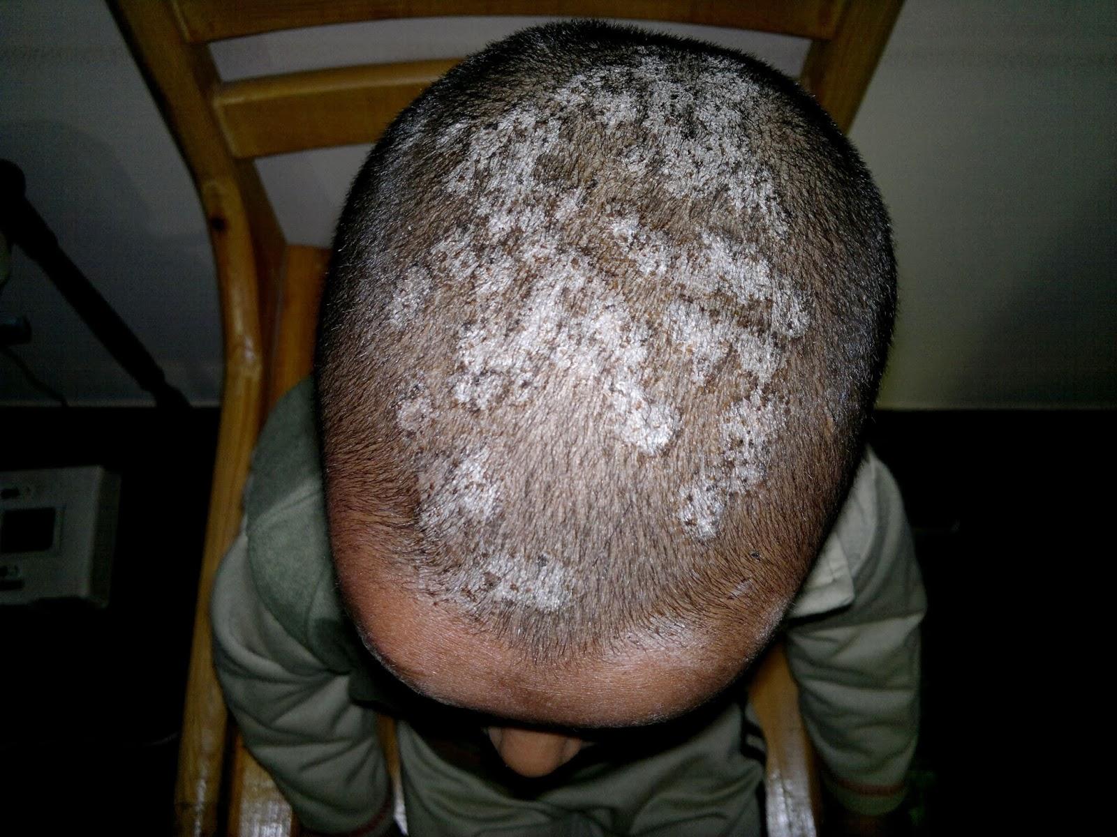 steroids treat acne