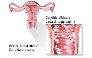Sakit Pada Vagina Yang Disebabkan Bakteri