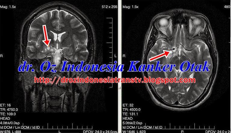 DR OZ Gejala Kanker Otak , Penyebab, Ciri Kanker Otak