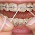Menjaga Kesehatan Gigi Pengguna Behel