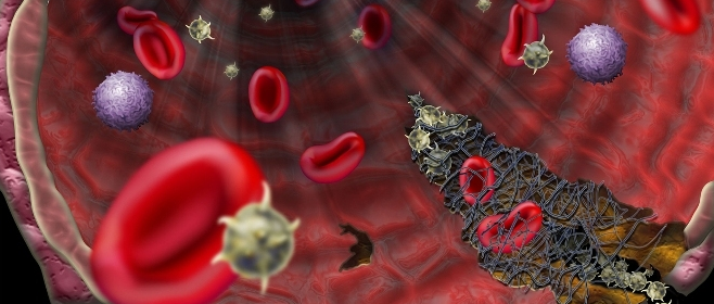 Hemoglobin ke Abhav ke Nuksaan