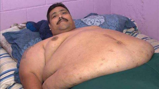 World's fattest man Andres Moreno dies in Mexico