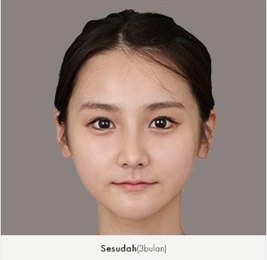sesudah koreksi tulang wajah di bedah plastik Wonjin