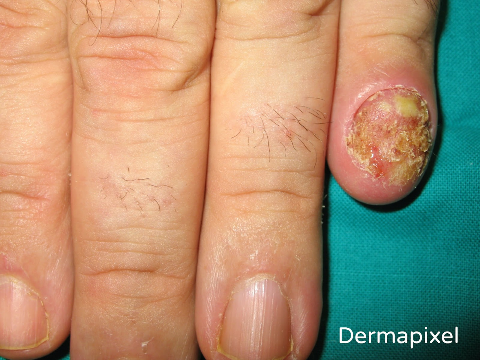 Dermapixel: Las uñas me supuran
