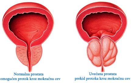 uvecana prostata