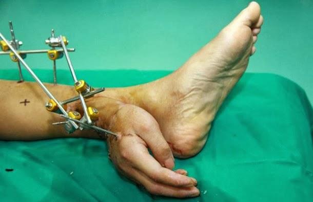 Homem com a mão cirurgicamente ligada ao seu tornozelo (com fotos)