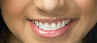 Is There Any Natural Way To Straighten Teeth