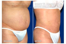 Tummy Tuck San Francisco