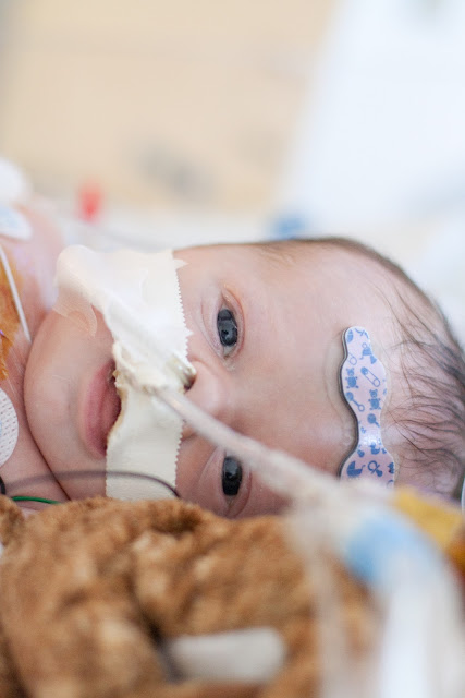 First time baby opens his eyes after open heart surgery