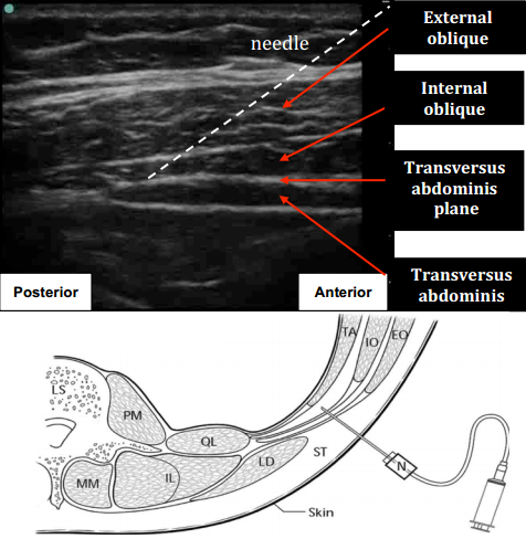 cpt code for ultrasound guided steroid injection