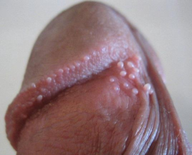 Get Rid Of Bumps On Penis 81