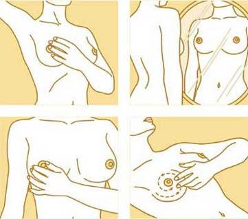 Autoexame ajuda a detectar o câncer de mama