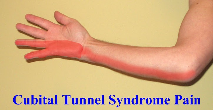 Cubital Tunnel Syndrome | Hawkes Physiotherapy Blog