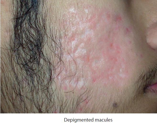 acne macules treatment