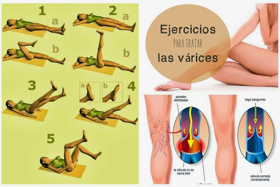 ejercicios para varices