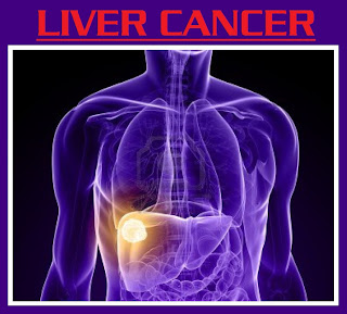 One of the reasons that liver cancer is frequently hard to diagnose is that many of its signs and symptoms are usually vague and nonspecific, meaning that almost any illness can cause them | symptoms of liver cancer