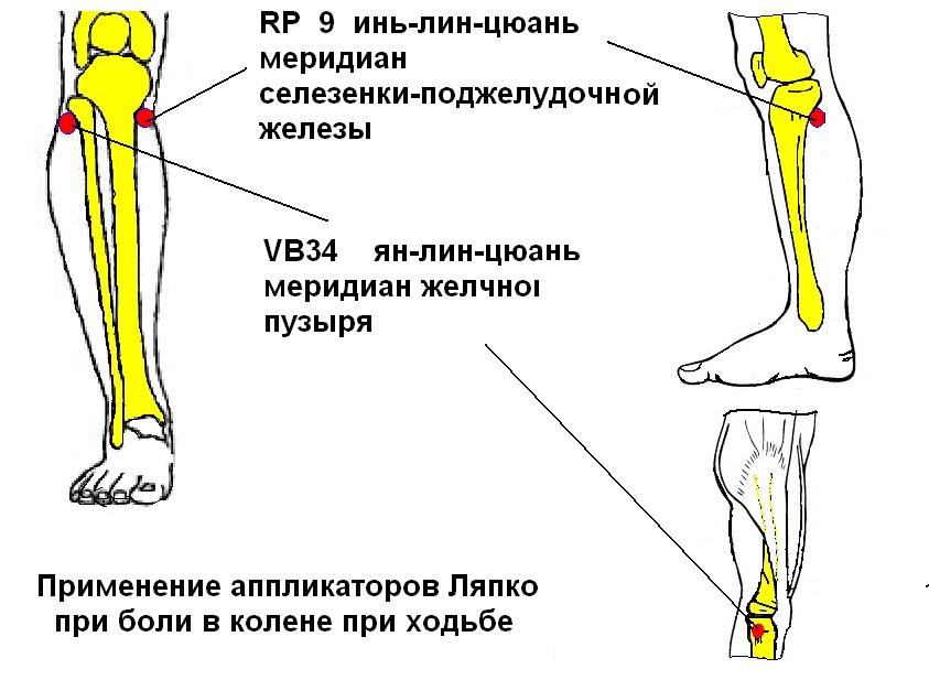 болят ноги выше колен ноющая боль