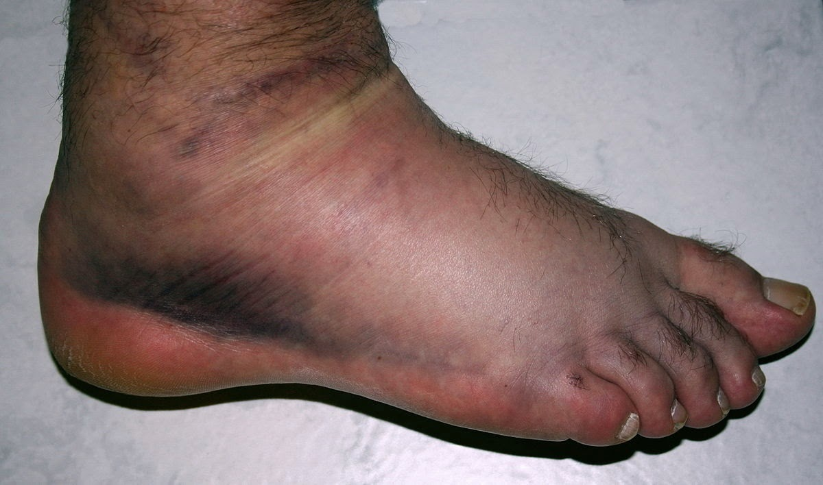 Sprained Ankle, Swollen, Purple