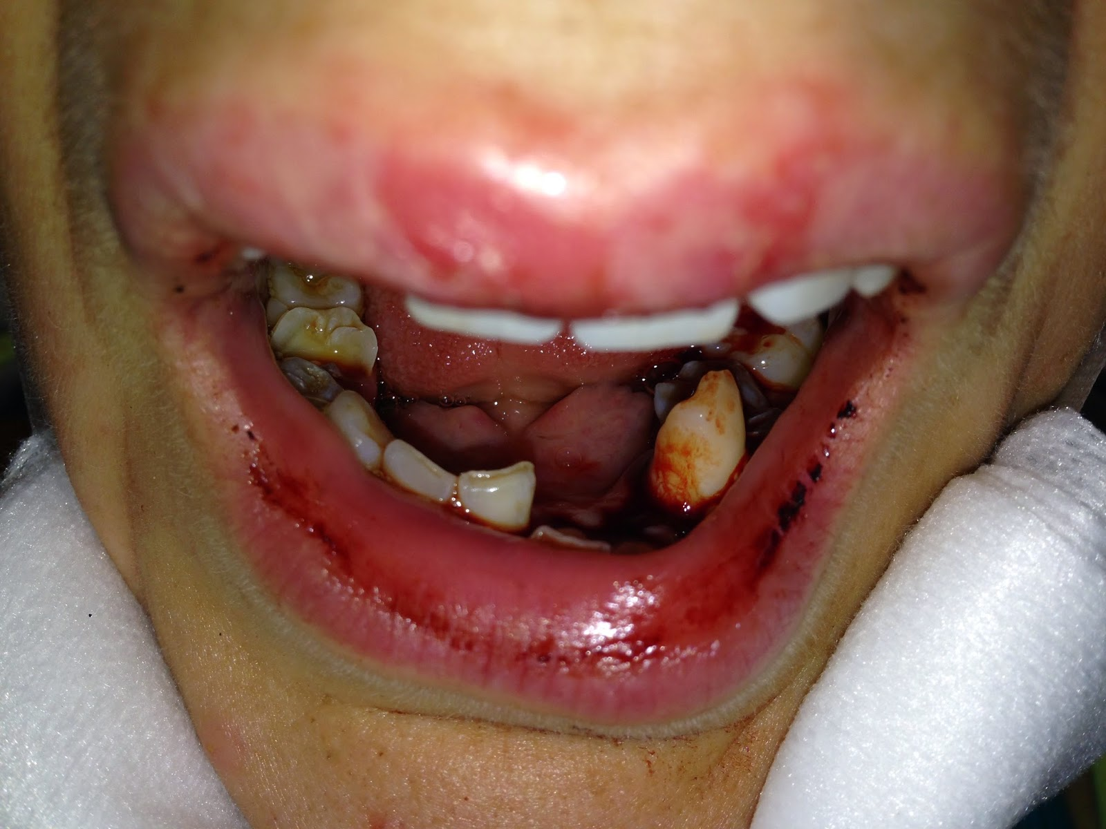 My Broken Jaw Trauma: October 2014