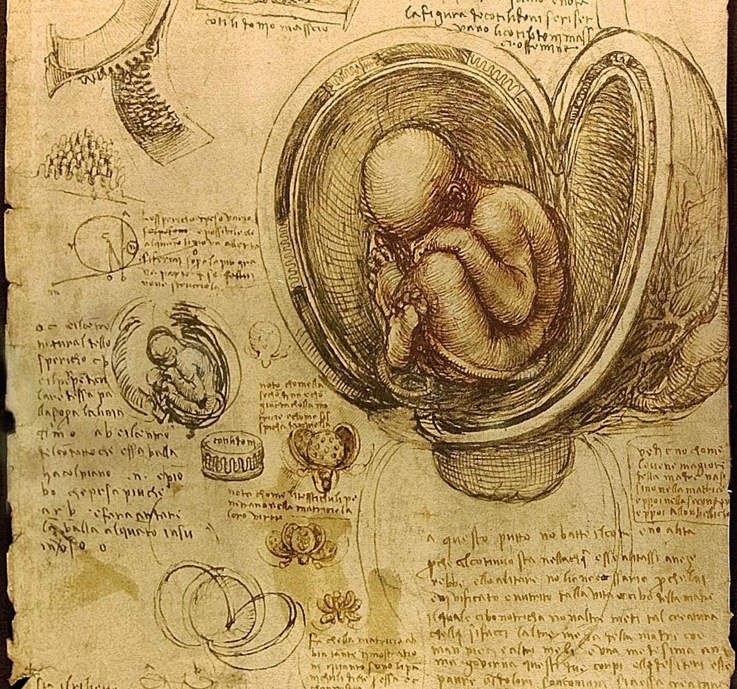 El síndrome de Fran: Leonardo da Vinci \