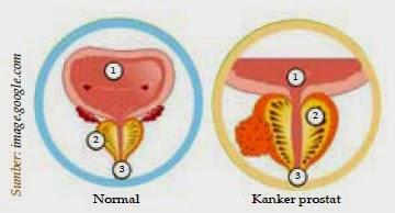 10 Penyakit Kelainan Sistem Reproduksi Manusia