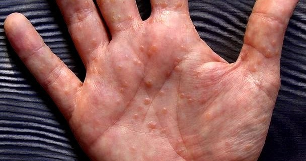 tiny blisters on hands