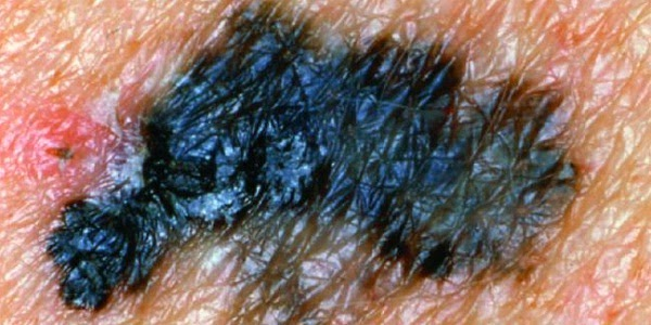 Skin Cancer Images