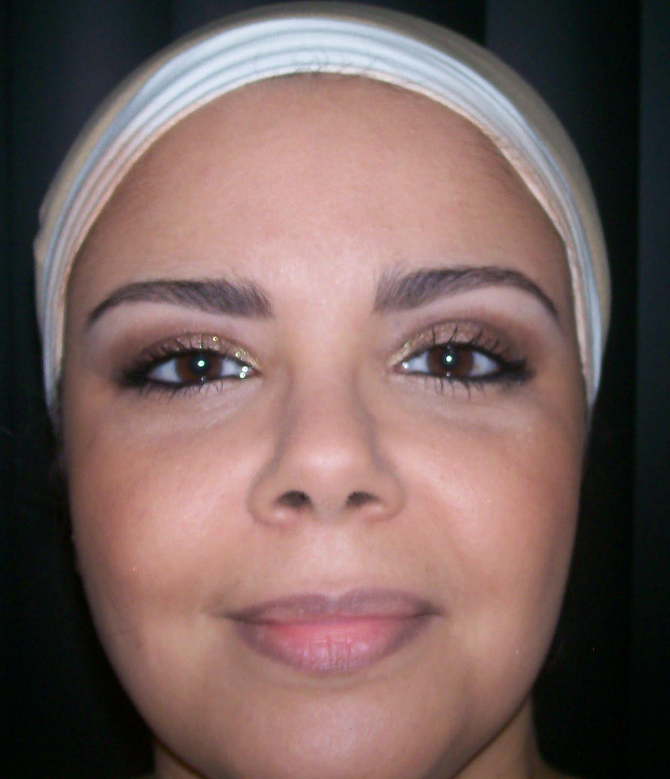 O pigmentary nota em uma razão o tratamento de pescoço