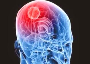 Kanker Otak Stadium 1, Sebuah tanda dan penyebab