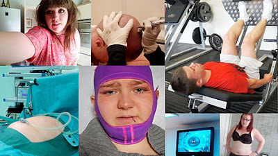 A selection of images from the programme, including Chloe in her purple facial pressure garment.