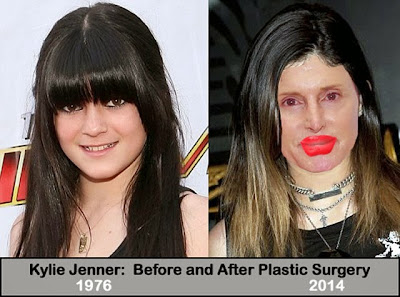 Kylie Jenner before after plastic surgery
