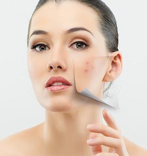 cara merawat jerawat pada kulit berminyak