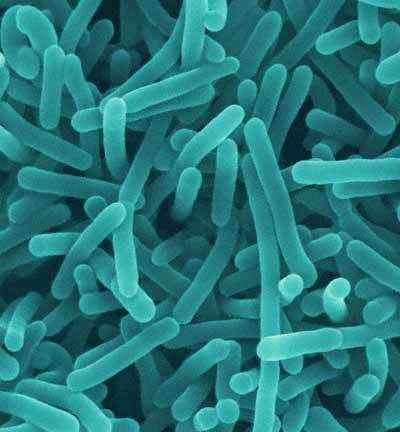 Waspada Ancaman Bakteri Listeria!
