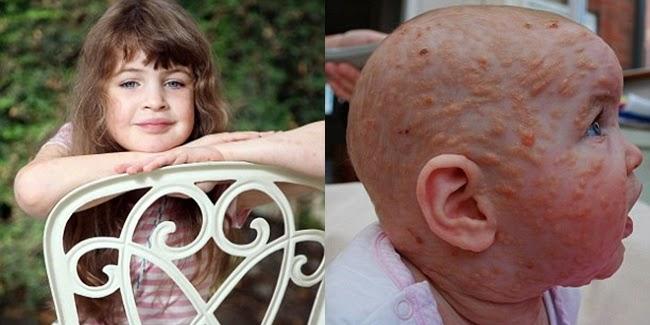 Kesehatan : Kulit Gadis Cilik Ini Melepuh Dan Gatal