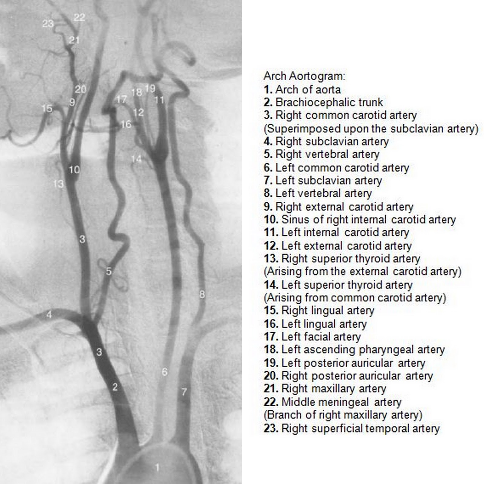 Dr Balaji Anvekar\'s Neuroradiology Cases: Normal Neck Angiogram DSA
