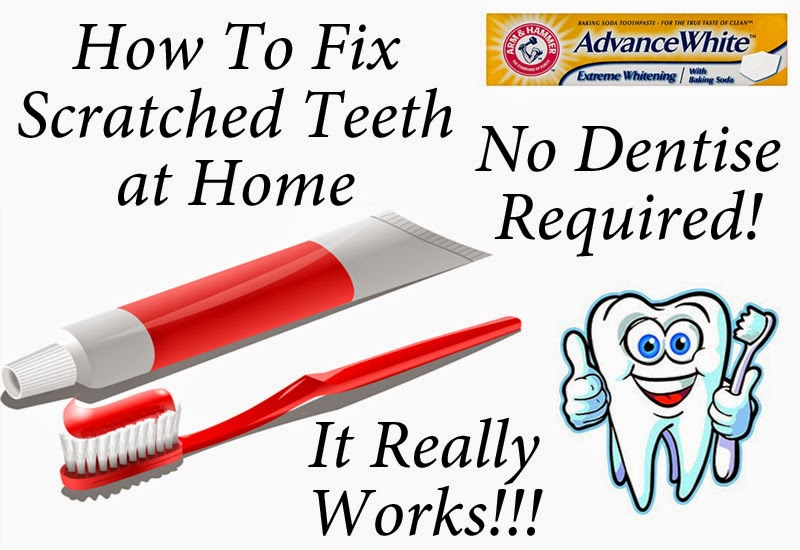 How to fix bad teeth with no money