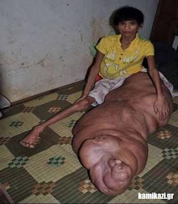 Σοκαριστικό: Το πόδι της ζυγίζει 70 κιλά... (pics)