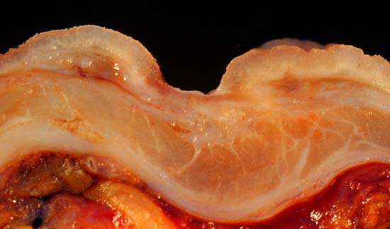 Gastric Ulcer Pictures  Part 1