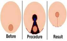 Before after breast reduction cosmetic surgery