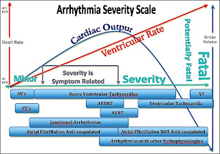 Cardiac Arrhythmia Scale