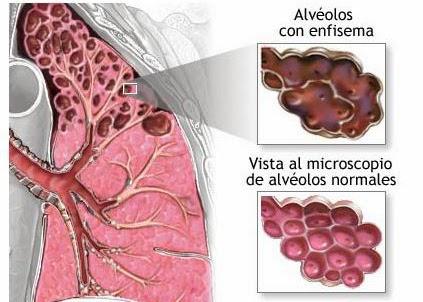 tabaquismo, enfermedad pulmonar, nicotina, problemas respiratorios, salud