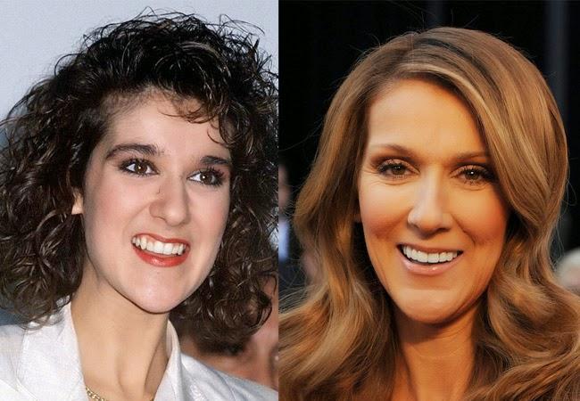 famosos con nueva dentadura celine dion