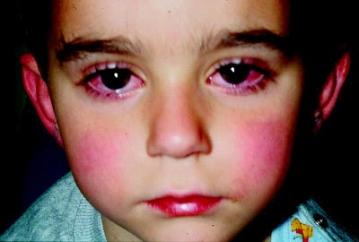 Rheumatic Fever Symptoms In Children and Rheumatic Heart Disease - NCP ...