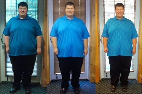 Weight loss surgery 4900