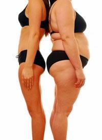 http://www.drrekhas.co.in/weight-loss.php