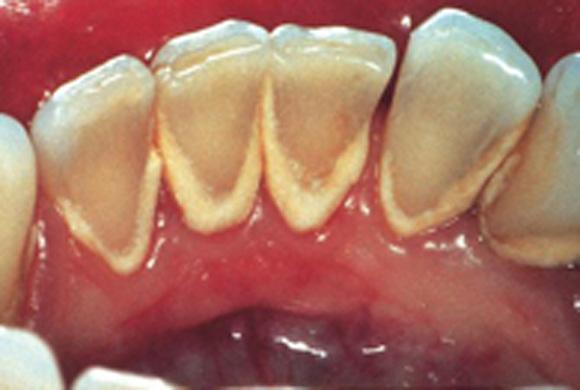Как самому почистить камни на зубах